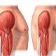 جلوگیری از تحلیل رفتن عضلات در قرنطینه