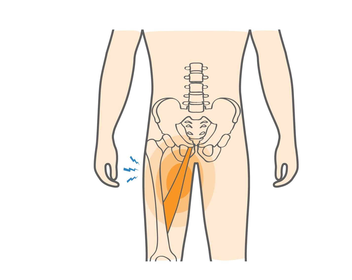 بهترین روش برای درمان کشیدگی کشاله ران